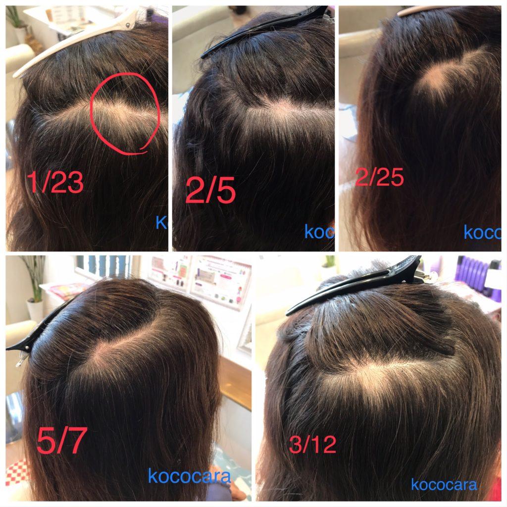 円形 脱毛 症 治る 前兆