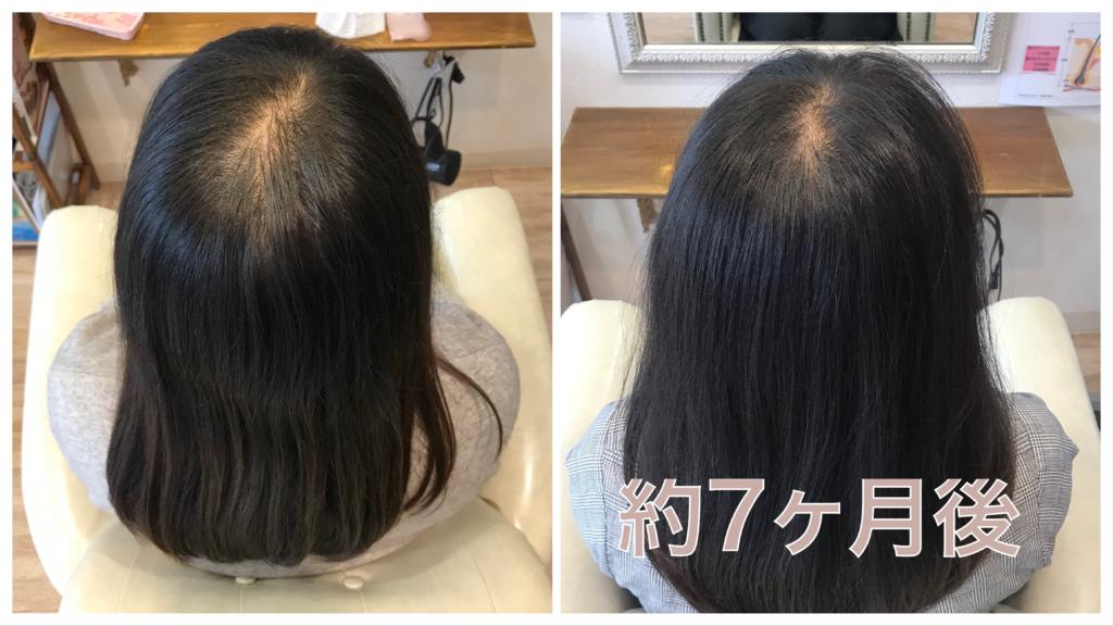山形県天童市で30代女性の薄毛、抜け毛の改善